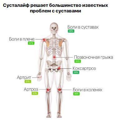 Как заказать замена коленного сустава здоровья